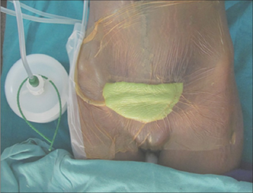 Negative Pressure Wound Therapy For Post Cesarean Post Hysterectomy
