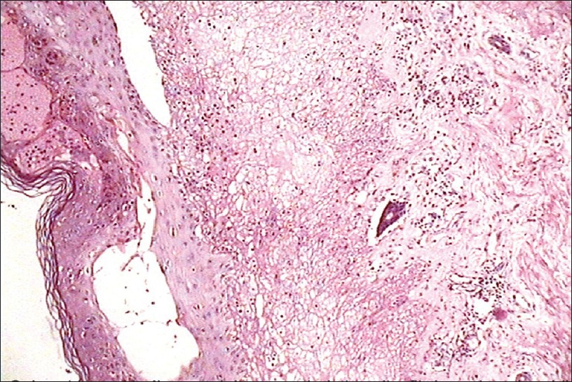 Figure 2: Dermo-epidermal clefting with dense neutrophilic infiltration in the dermal papillae with eosinophils