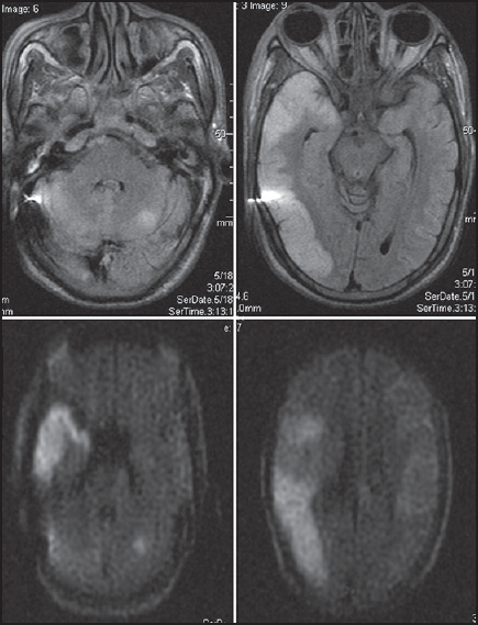 Figure 2: MRI brain FLAIR and diffusion-weighted images showing extensive infarctions involving right temporal, parietal, occipital lobes and small infarct in the left cerebellar hemisphere