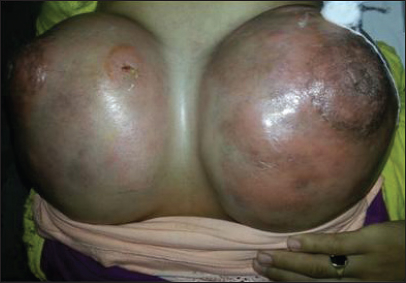 Figure 5: Bilateral diffuse breast swelling