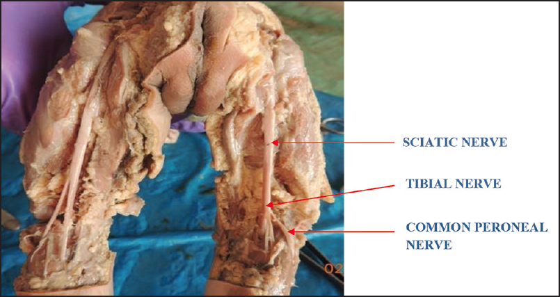 Level Of Division Of Sciatic Nerve In Fetuses Leishiwon P S Matum M