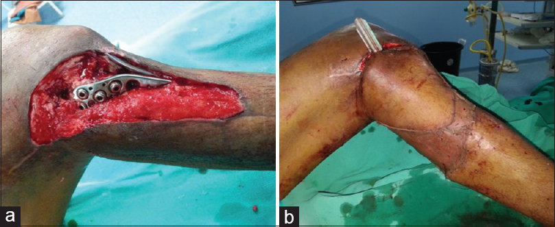 Figure 4: Exposed metal at knee and upper one-third leg. (a) Preoperative view, (b) posterior tibial artery perforator flap <i>in situ</i>